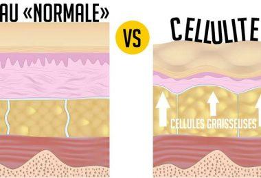 Cellulite sur les fesses : comment s'en débarrasser ?